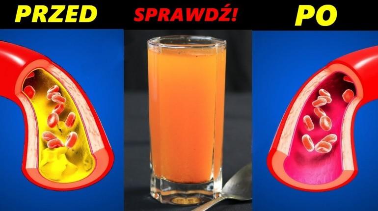 ODBLOKUJE TĘTNICE I zapobiegnie chorobom serca - Sprawdź ten pyszny napój!