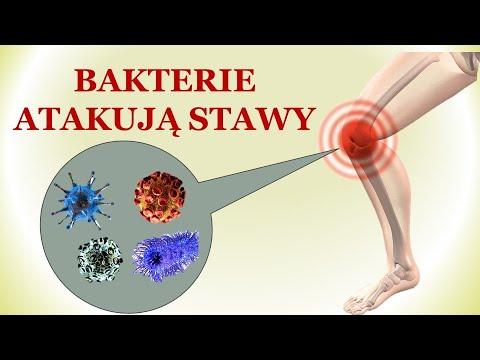 Wpływ bakterii na bóle stawów. Prof. dr hab.Ewa Sawicka-Sienkiewicz